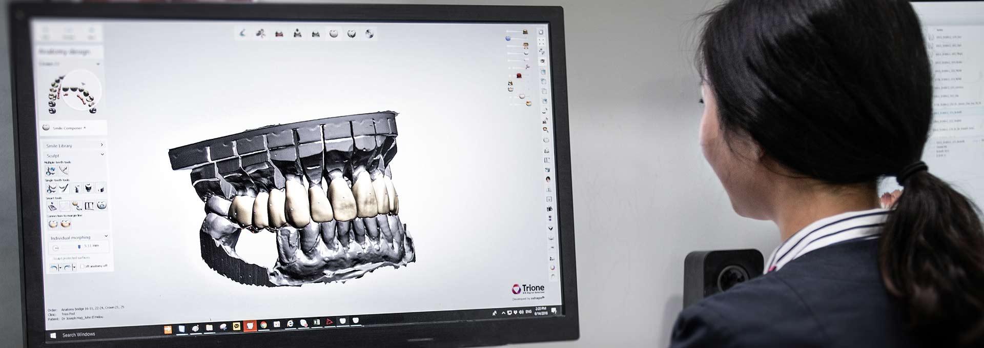 digital dental implants blog in sydney