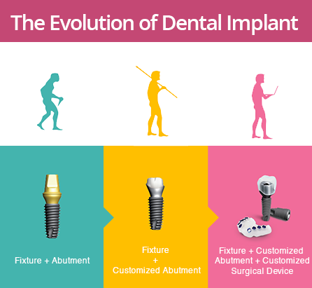 digital dental implant in sydney