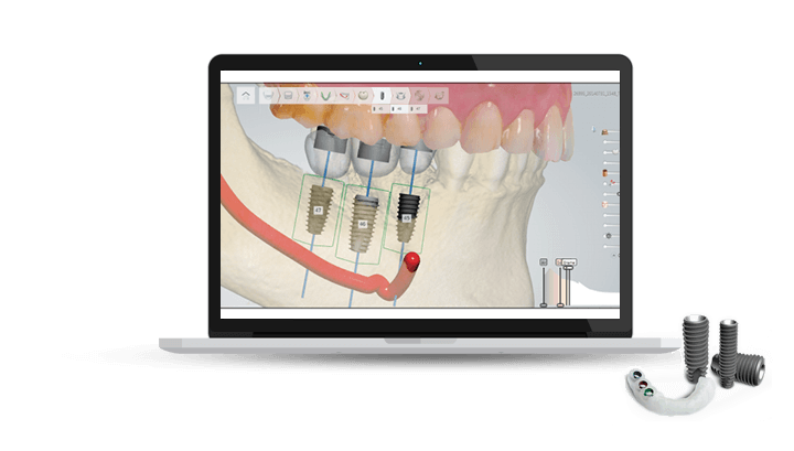 digital dental implants in sydney