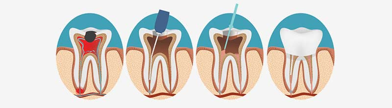 root canal in sydney